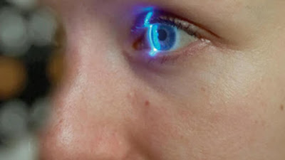 Riuscire a vedere dopo anni di cecità