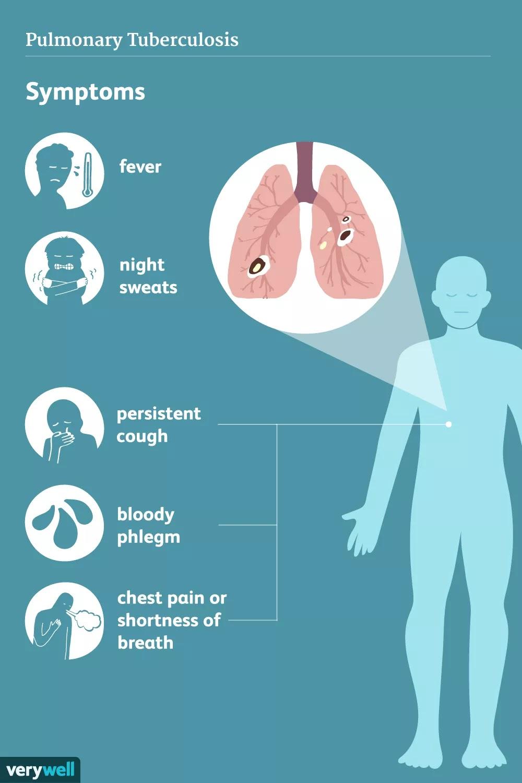 Jenis Dan Macam-Macam TBC ( Tuberkulosis )