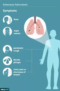 10 Penyakit yang Dapat Menyerang Sistem Pernapasan Manusia