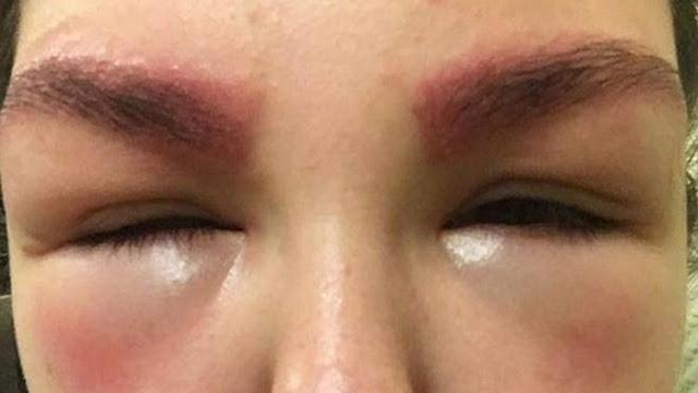 Mulher tem reação alérgica grave após fazer micro pigmentação nas sobrancelhas