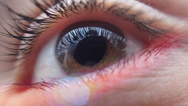 How to avoid Glaucoma with Best Tips