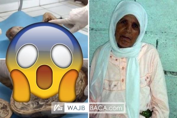 Takut Melahirkan Ibu ini Tega Kandung Bayi Selama 46 Tahun Hingga Begini Kondisi Bayinya Sekarang