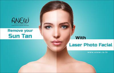 Best laser treatment in bangalore