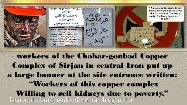 Copper Miners Seeking to Sell Kidneys Is Disgrace for Iran's Mullahs