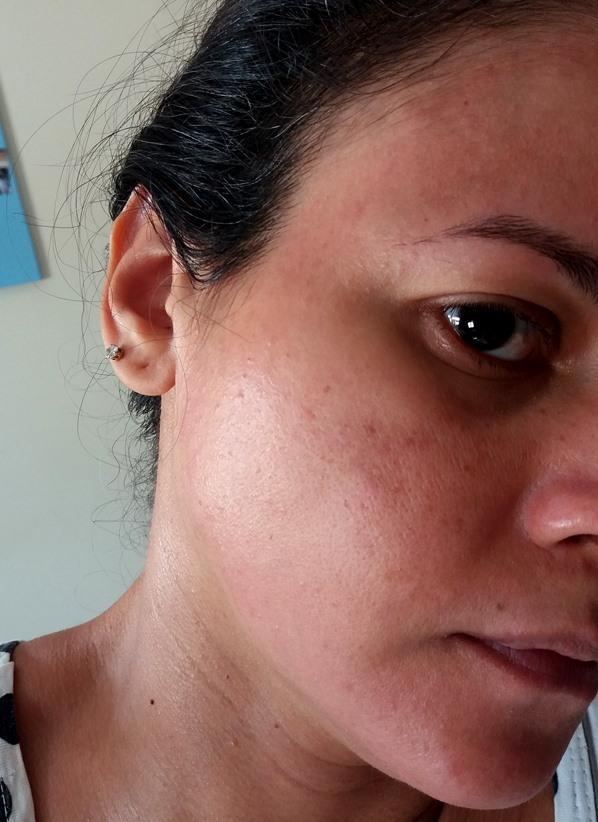 Diário de um peeling: Primeiro dia