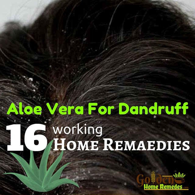 Aloe Vera For Dandruff, Aloe Vera Gel For Dandruff, How To Use Aloe Vera For Dandruff, How To Get Rid Of Dandruff, How To Remove Dandruff, Home Remedies For Dandruff, Dandruff Treatment, Dandruff Remedies, Treatment For Dandruff, Dandruff Home Remedy