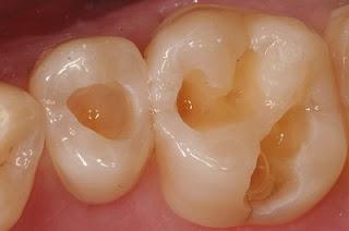 10 Cara Alami Mencegah Gigi Berlubang
