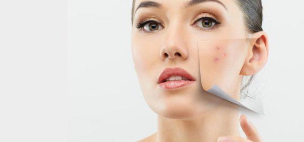 Face Masks For Acne: