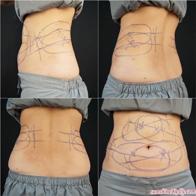 CoolSculpting Treatment, Clique Clinic, CoolSculpting Review, Slimming, Beauty