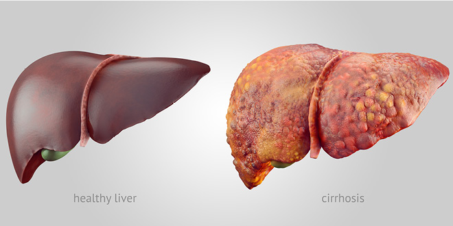 Remove All The Fats From The Liver In A Few Days