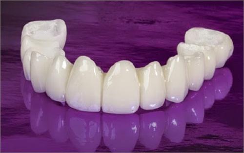Răng sứ EMAX - Dòng răng sứ của sự ĐẲNG CẤP!! 1