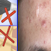 How Pimples Are Formed: 9 Things You Didn't Know Cause Acne