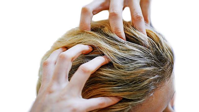 وصفة طبيعية للتخلص من حكة الرأس