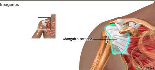 Bursitis subacromiodeltoidea enfermedad profesional
