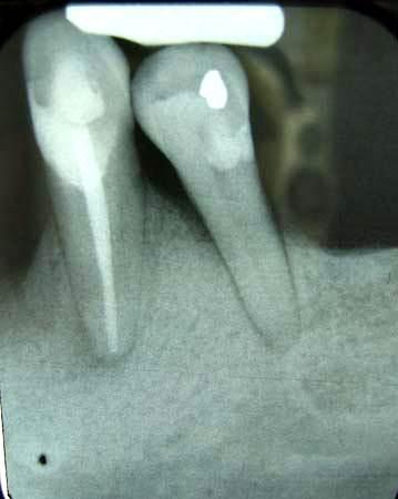 Periodontitis: Película de rayos X de dos dientes mandibulares
