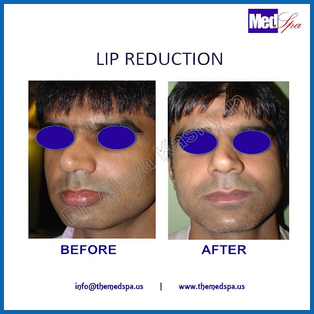 lip_reduction_drajayakashyap