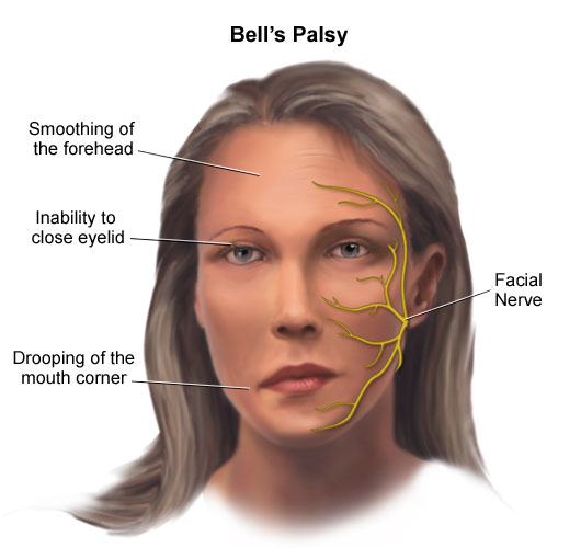Hypoglycemia Facial Paralysis
