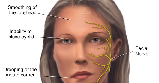 bell's palsy both sides