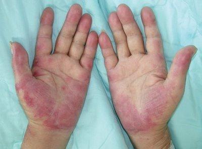 UFPE Hospital La Fe: Síndrome de Mano-pie