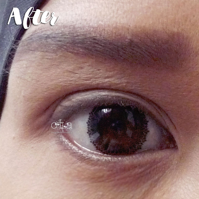 X2 Bio Lace Softlens Review Mata After