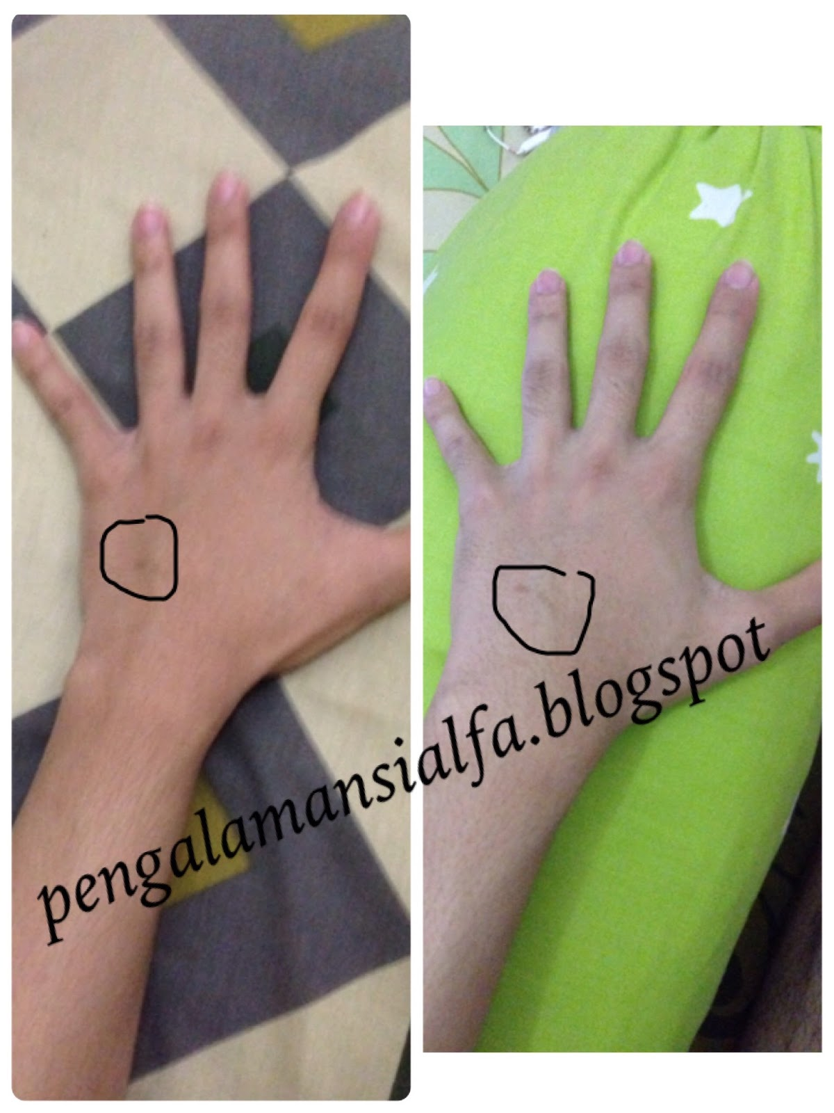 REVIEW GLUTA PANCEA TERBARU NEW PANACEA INDONESIA