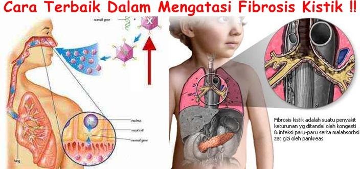 Obat Tradisional Fibrosis Kistik