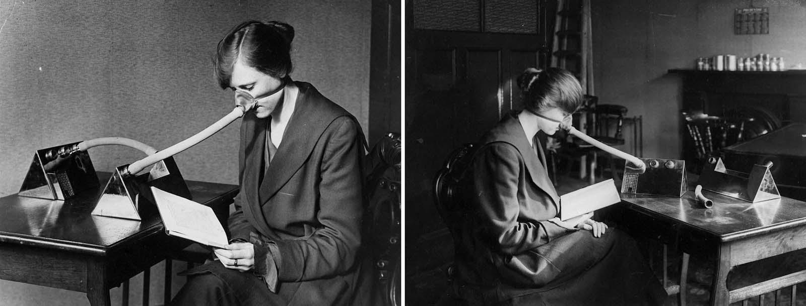 A patient wears a flu nozzle. 1919.