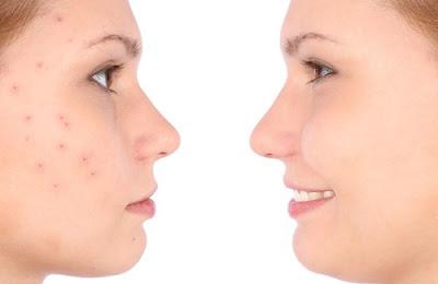 Recette de grand mère pour se débarrasser de l'acné