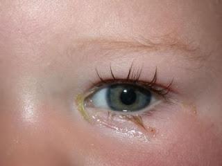 القناه الدمعيه للعين, المجاري مسدودة, سبب تدميع العين, طريقة فتح انسداد المجاري, طريقه لفتح المجاري المسدوده, علاج انتفاخ جفن العين العلوي, علاج انسداد المجاري, فتح المجاري المسدودة, قطرة العين للاطفال حديثى الولادة