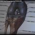 ORTOPEDIA. TRAUMI DISTORSIVI. Cosa FARE? Parla il chirurgo ortopedico E. TAGLIALATELA