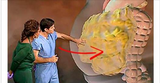 Voici comment éliminer la graisse abdominale d'après le plus célèbre médecin américain