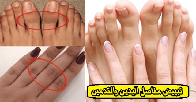تبييض مفاصل أصابع اليدين والقدمين بطرق طبيعية بسيطة | ملكة العرب.