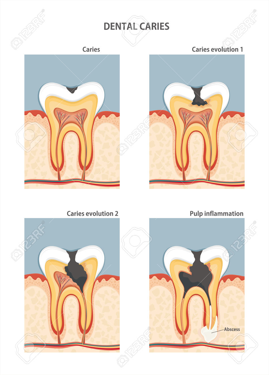 preventing and treating common dental problems essay Know how to prevent and treat all kind of dental problems and diseases expert dentists in maumee, ohio can help you to deal and overcome all kind of dental issues.
