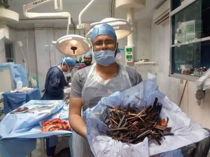 Surgeons remove nails, scissors, other metals from 43-year-old woman's stomach (graphic)