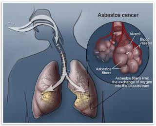 Asbestos lungs cancer