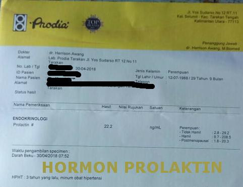 Hasil Tes Hormon Prolaktin : Laboratorium Prodia