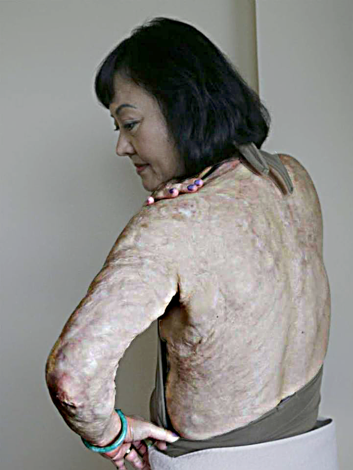 Kim displays her lingering scars from the incident that set the course for her life.