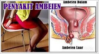 Obat Ambeien AmbeJoss Salwa