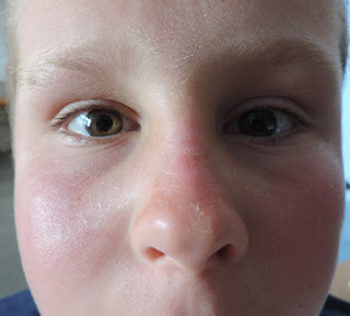 boys sunburnt face peeling