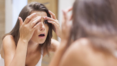 how-to-get-rid-of-acnes طرق بسيطة تخلصك من حبوب الوجه سريعا