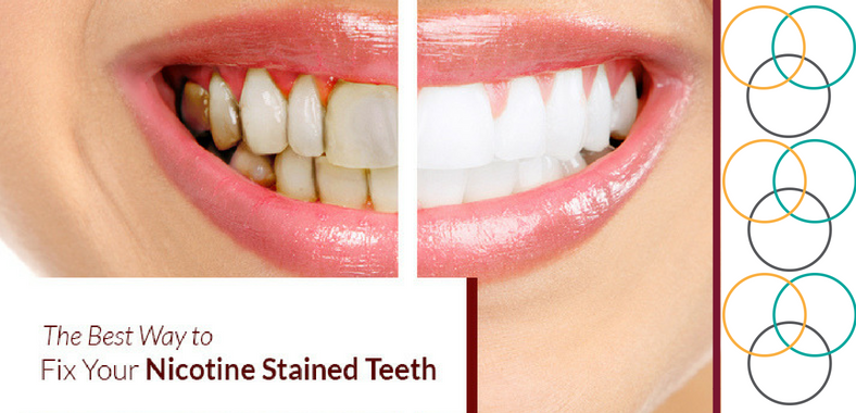 The Best Way to Fix Your Nicotine Stained Teeth
