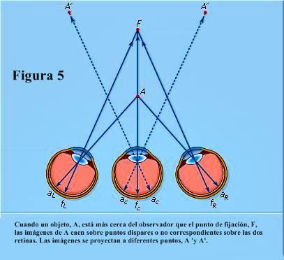 Figura 5: Diplopía fisiológica, o visión doble.