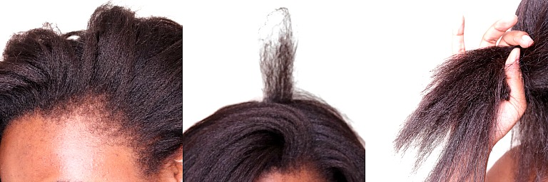 Thinning relaxed hair