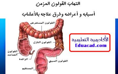 الصحة , معلومات , علاج القولون , علاج القاولون , علاج القولون بالاعشاب , طب بديل , صحتك , اعشاب , ثقافة , معرفة , جديد , Colon , health ,