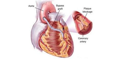 Inilah Cara Mencegah Penyakit Jantung Berbahaya , Cara mencegah penyakit jantung