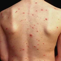 How To Get Rid Of Acne Scar Redness