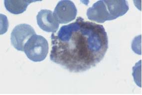 Segmented neutrophilic granulocyte after the peroxidase reaction