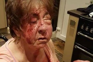 Horrific injuries of disabled gran beaten by masked robbers with baseball bat - while she sat in WHEELCHAIR