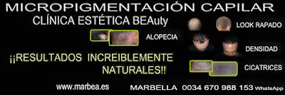micropigmentación capilar Madrid Clínica Estética y tratamiento caida del cabello mujeres Madrid: Te ofrecemos la mayor calidad de servicios