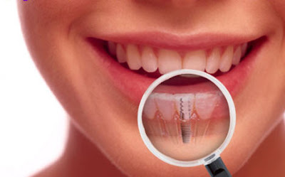 Dental Implants E1405498123156